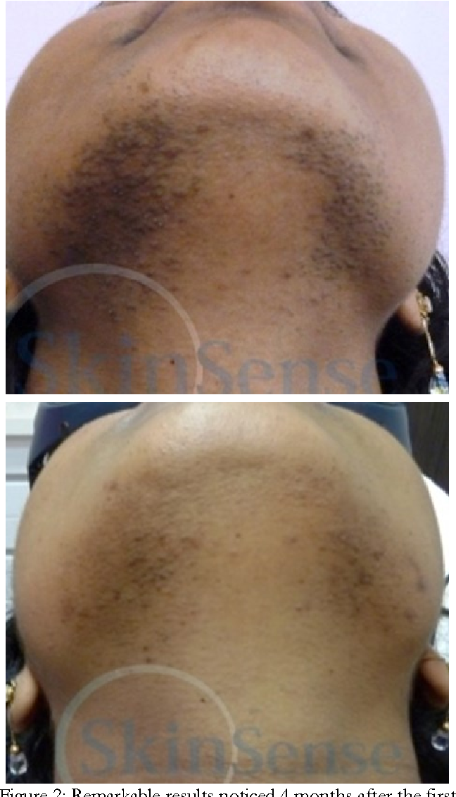 Figure 2 From Case Report Sub Millisecond 1064 Nm Nd Yag Laser Hair Removal On Indian Skin Semantic Scholar
