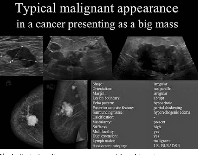 Figure 4 From Advanced Breast Ultrasound And Interventions An