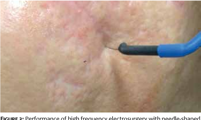 Figure 3 From High Frequency Electrosurgery In Ice Pick