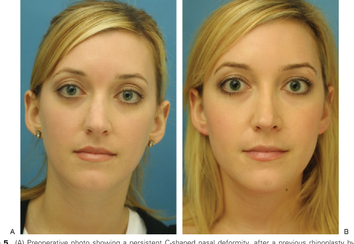 Figure 5 from Osteotomies in the crooked nose  - Semantic