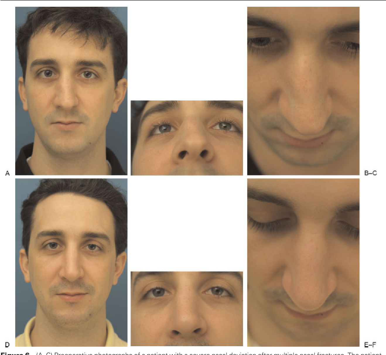 Figure 6 from Osteotomies in the crooked nose  - Semantic