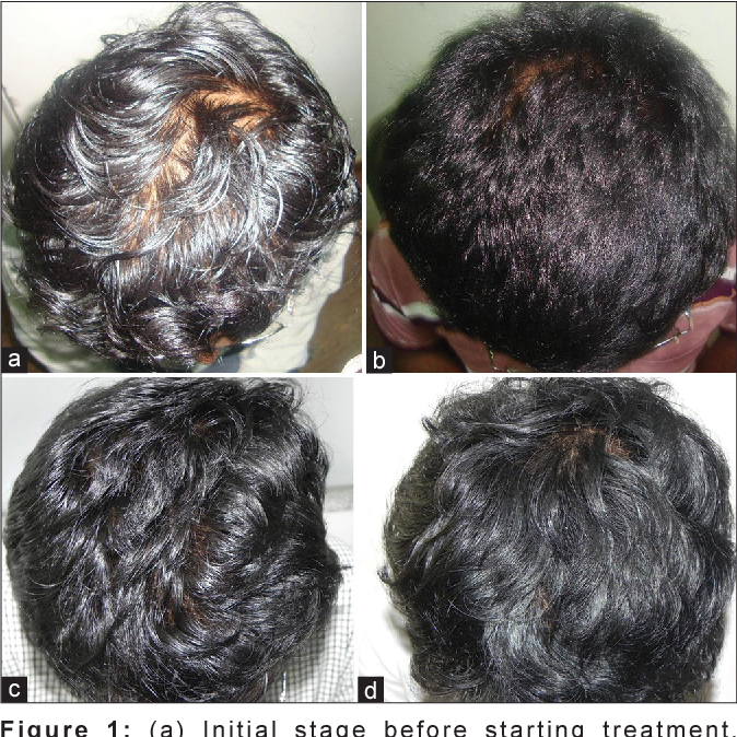 Pdf Topical Minoxidil Fortified With Finasteride An Account Of Maintenance Of Hair Density After Replacing Oral Finasteride Semantic Scholar