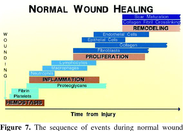 Figure 7 from Wound healing: an overview of acute, fibrotic