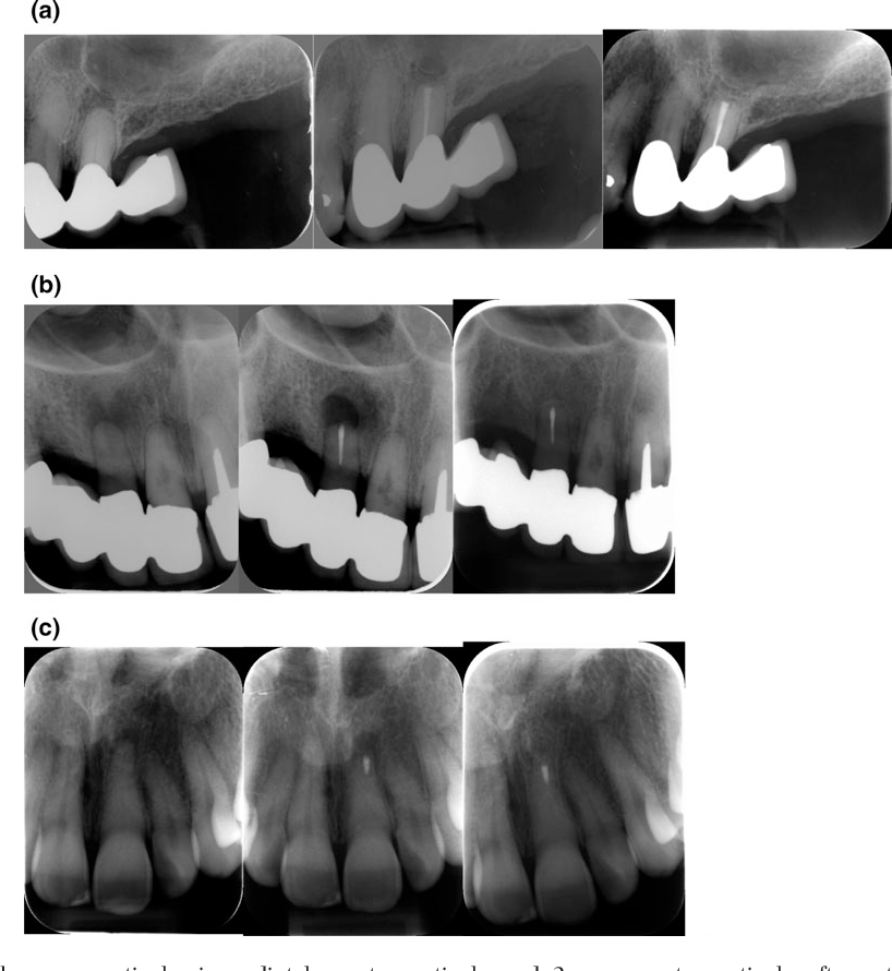 Retrograde root canal treatment: a prospective case series