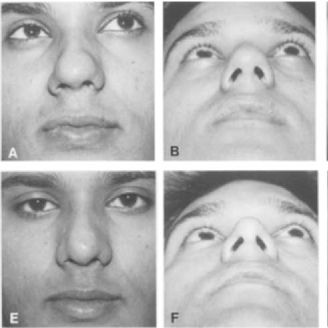 Figure 4 from Art and science in aesthetic rhinoplasty