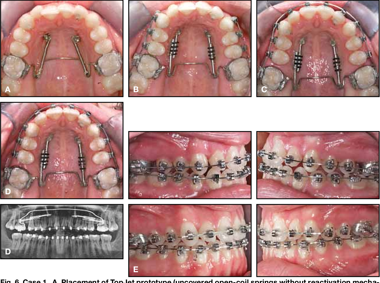 Figure 6 from The TopJet for routine bodily molar