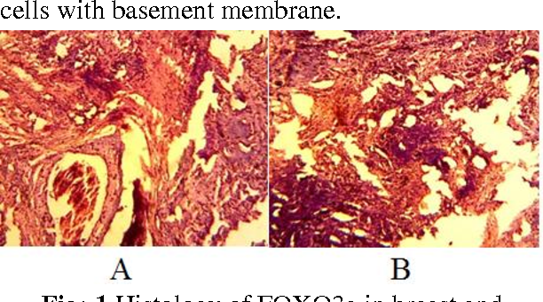 HISTOLOGICAL AND IMMUNOHISTOLOGICAL CHANGES DURING THE EXPRESSION ...