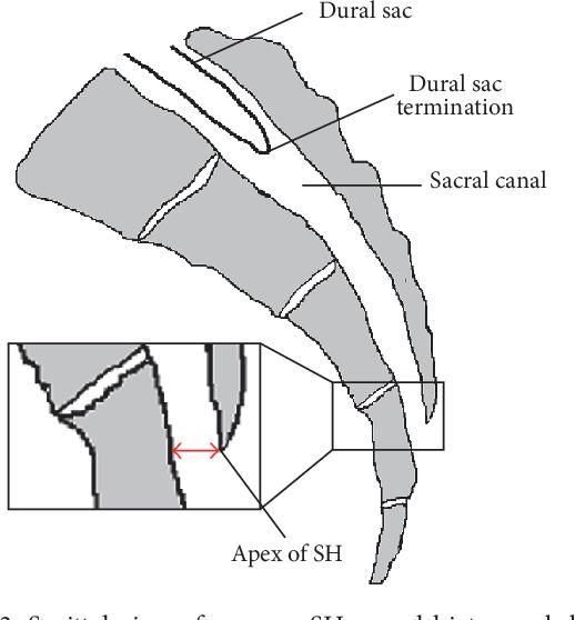 Caudal epidural block pdf free