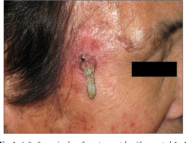 Figure 1 from A case of cutaneous horn originating from