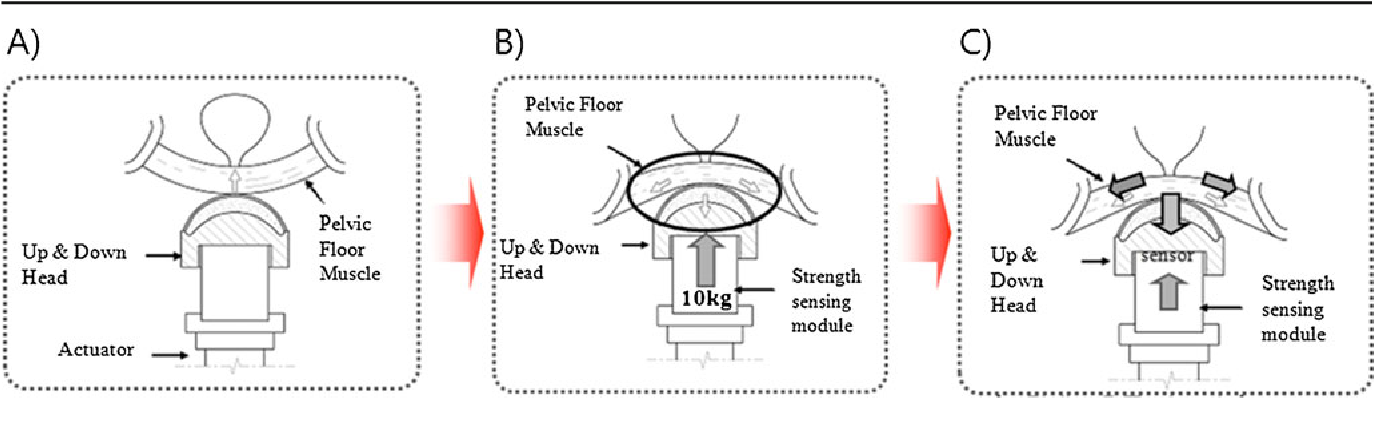 Figure 1 From Pelvic Floor Muscle Training Using An Extracorporeal