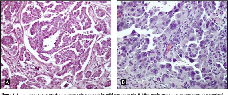Figure 1 From Low Grade Serous Ovarian Cancer A Unique Disease Semantic Scholar