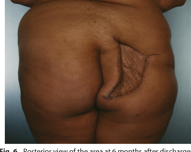 Blindness and necrotizing fasciitis after liposuction and