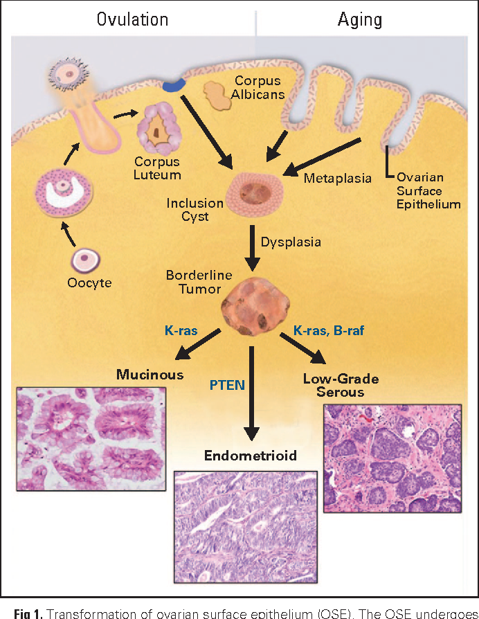 Pdf New Insights Into The Pathogenesis Of Serous Ovarian Cancer And Its Clinical Impact Semantic Scholar