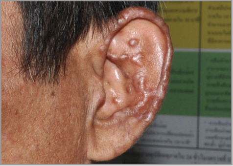 Chronic generalized fibrotic skin lesions from disseminated