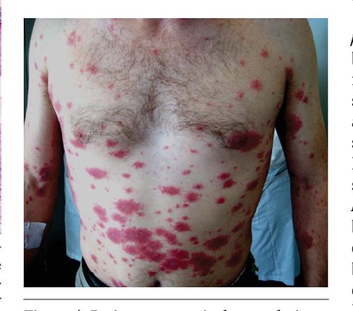 Figure 4 From Stevens Johnson Syndromeerythema Multiforme