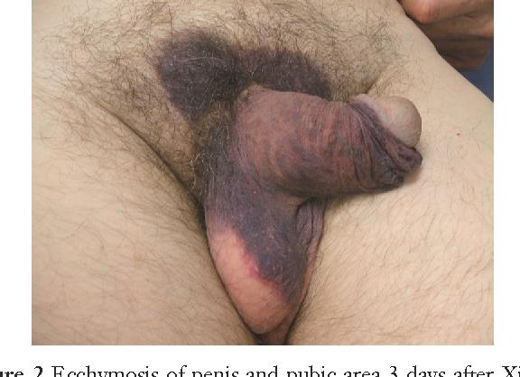 Pearls on penis