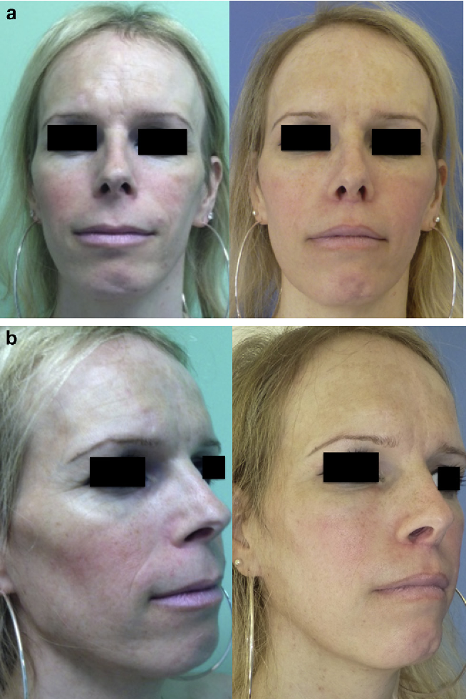 Figure 6 from [Facial feminization surgery - middle and