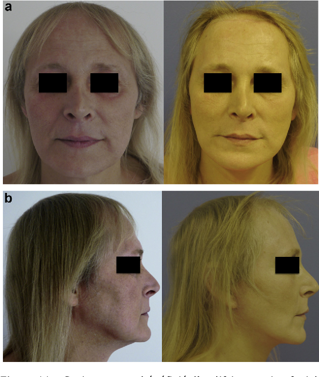Figure 11 from [Facial feminization surgery - middle and