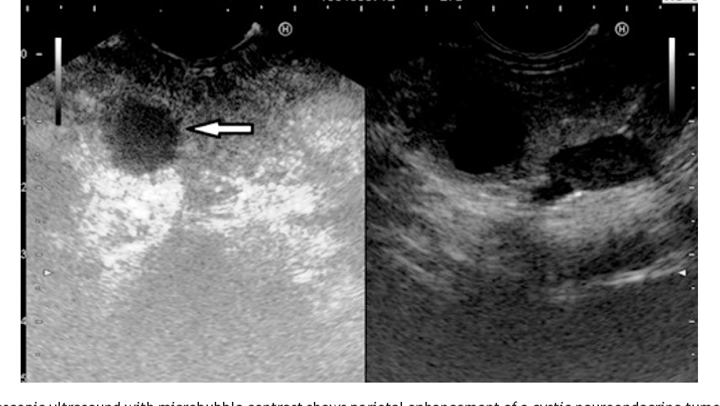 Figure 5 from Endoscopic ultrasound of pancreatic tumors