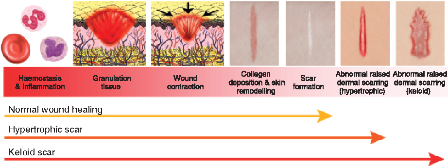 Molecular dissection of abnormal wound healing processes