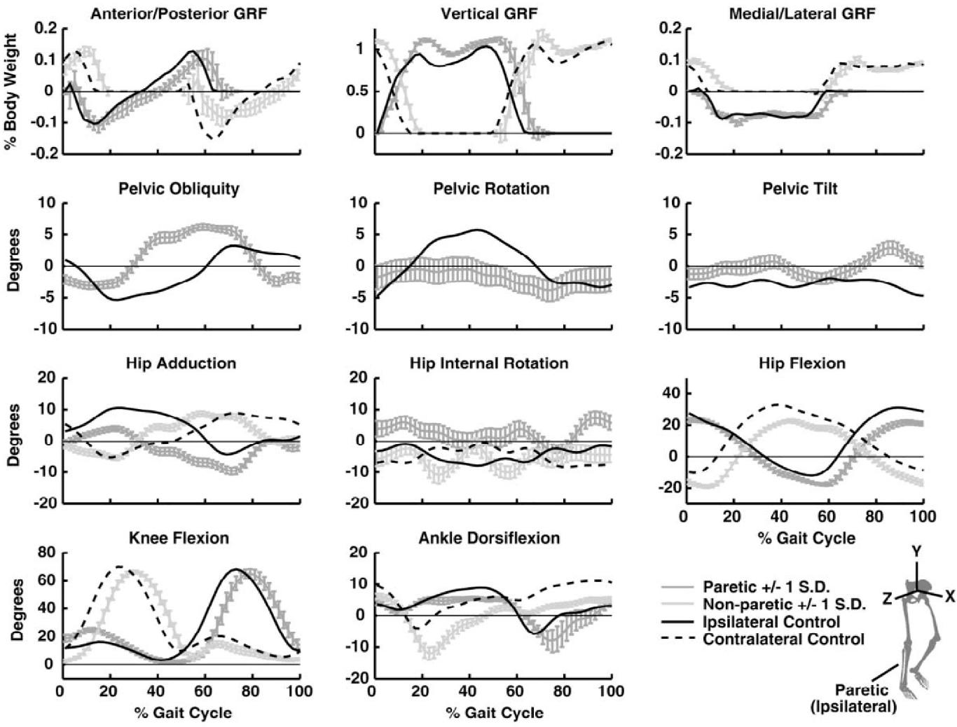 Pre-swing deficits in forward propulsion, swing initiation