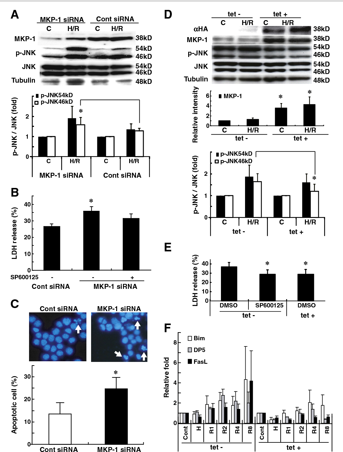 Figure 4 from Over-expression of map kinase phosphatase-1 ... on