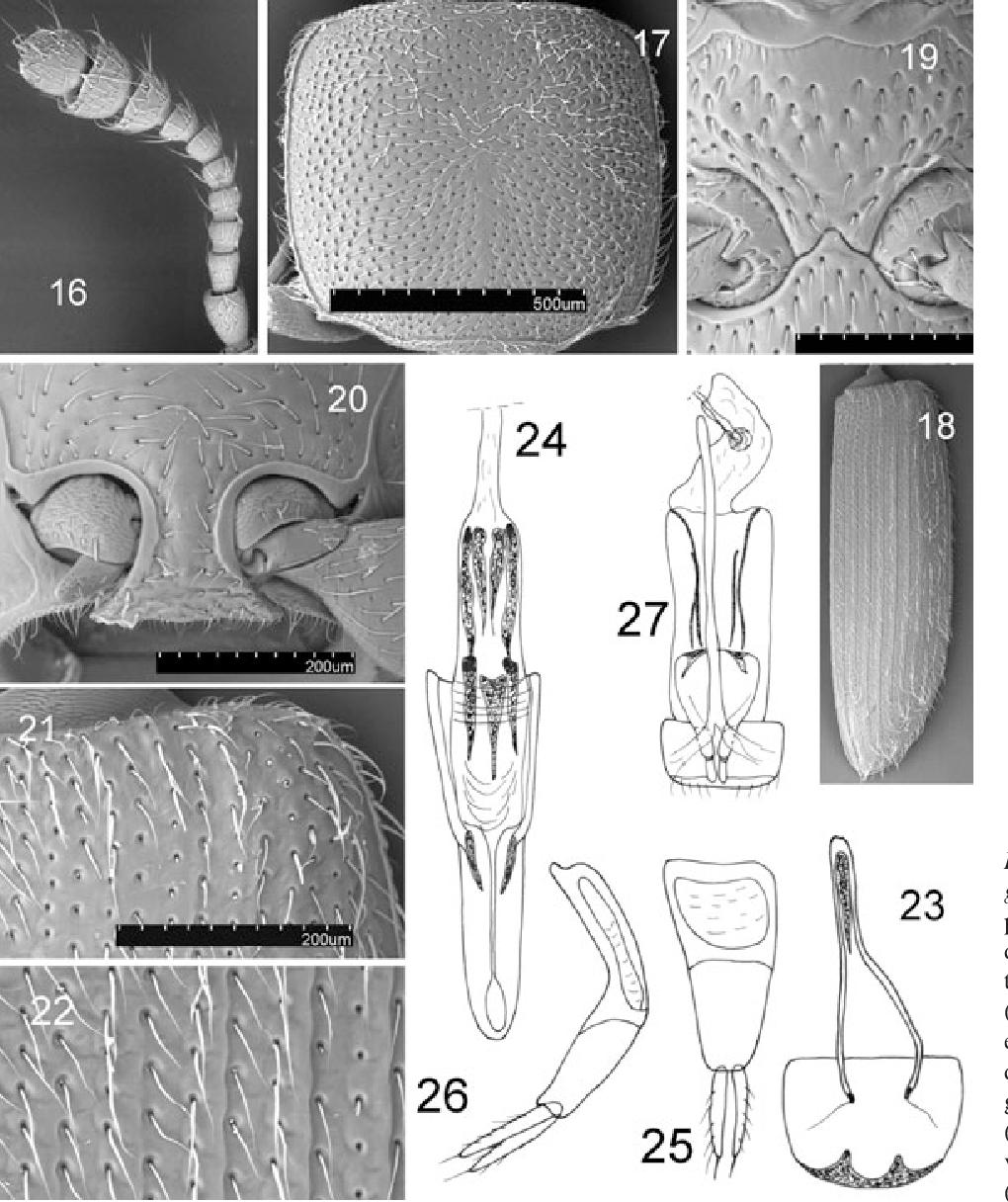 figure 16–27