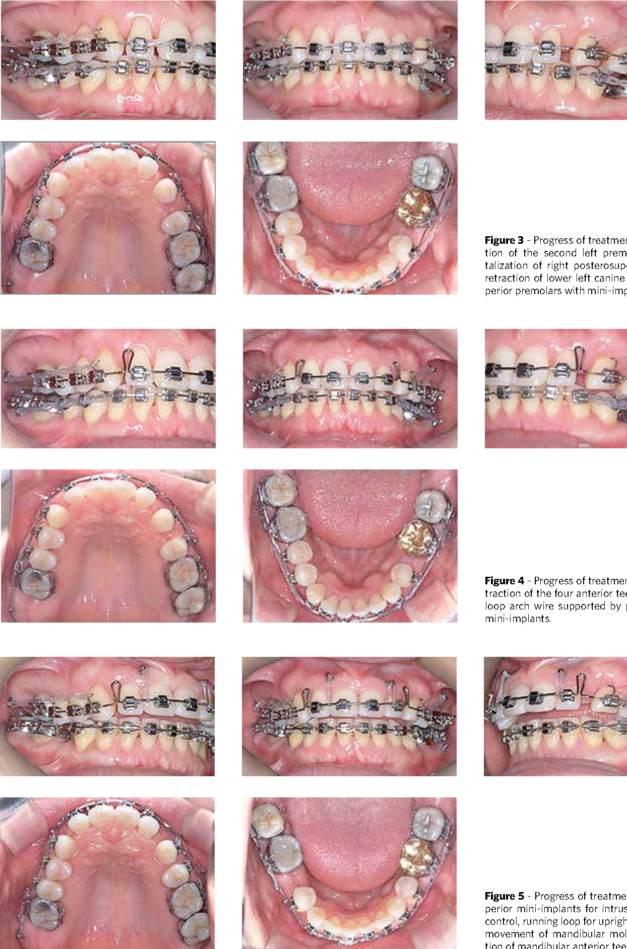 Figure 4 from Treatment of Class II malocclusion with
