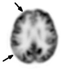 figure 26.7
