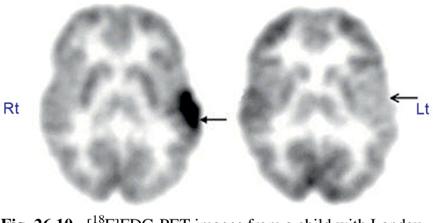 figure 26.10