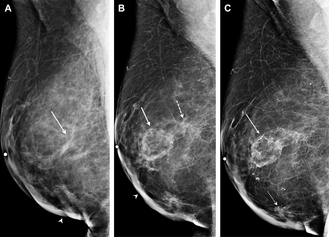 Figure 5 from Reduction Mammaplasty and Breast Cancer