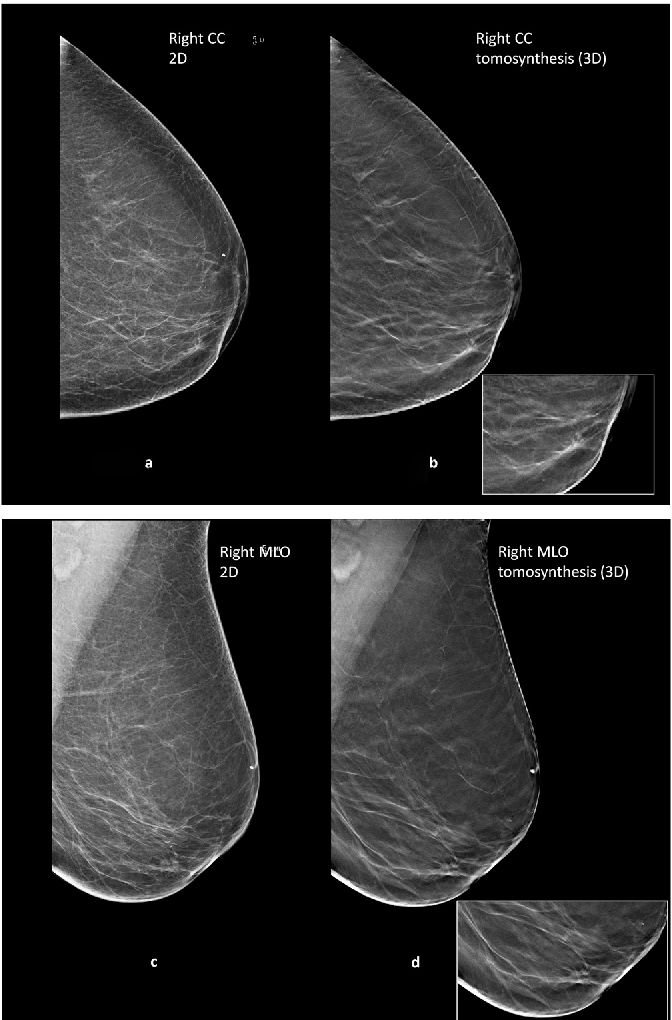 Figure 2 From Breast Cancers Detected In Only One Of Two Arms Of A