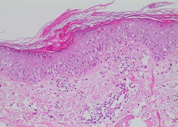 Infliximab-induced cutaneous eruption resembling pityriasis