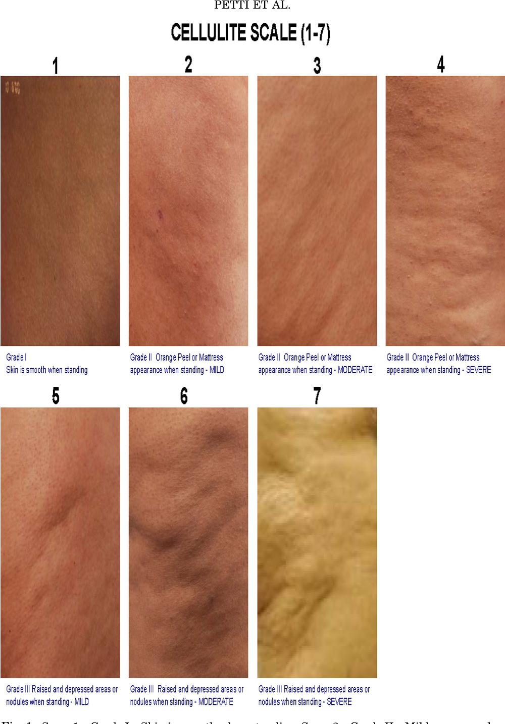 Figure 1 From Laser Cellulite Treatment And Laser Assisted Lipoplasty Of The Thighs And Buttocks Combined Modalities For Single Stage Contouring Of The Lower Body Semantic Scholar