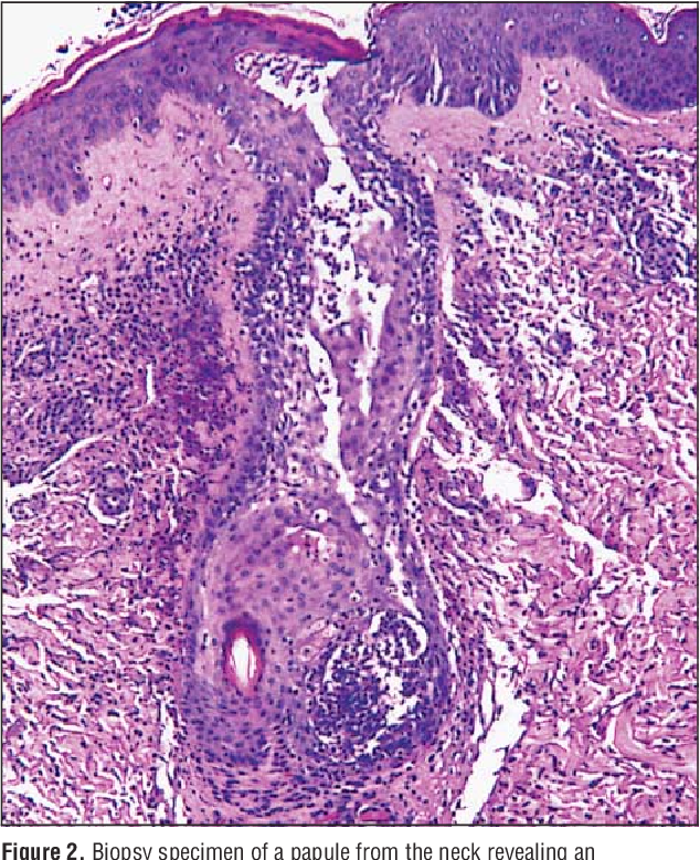 Eosinophilic Folliculitis In 2 Hiv Positive Women