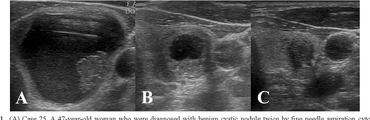 Figure 1 From Benign Cystic Nodules May Have Ultrasonographic Features Mimicking Papillary Thyroid Carcinoma During Interval Changes Semantic Scholar