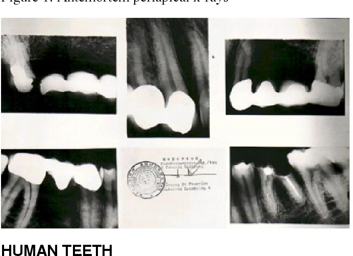 Pdf Methods For Human Identification In Forensic Dentistry A Review Semantic Scholar