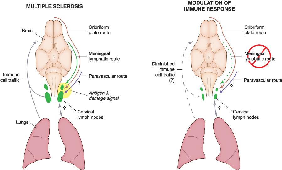 Figure 4 from Lymphatics in Neurological Disorders: A Neuro