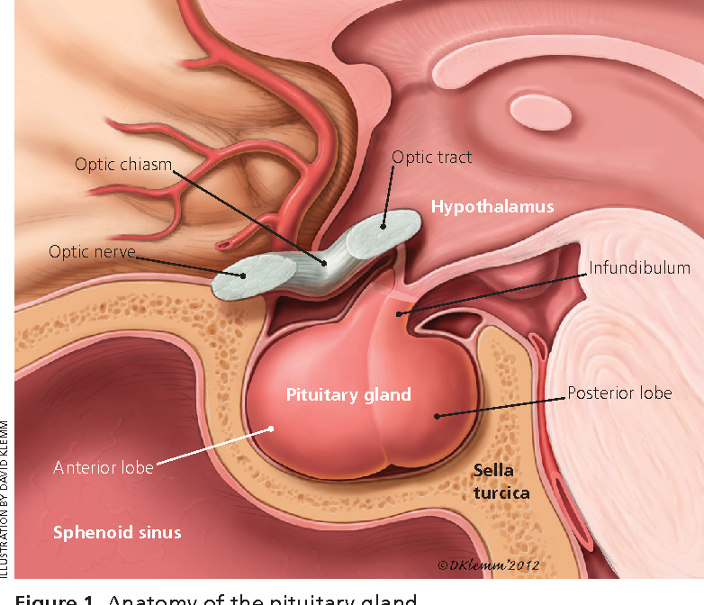 Large tumors (macroadenomas) and pituitary carcinomas