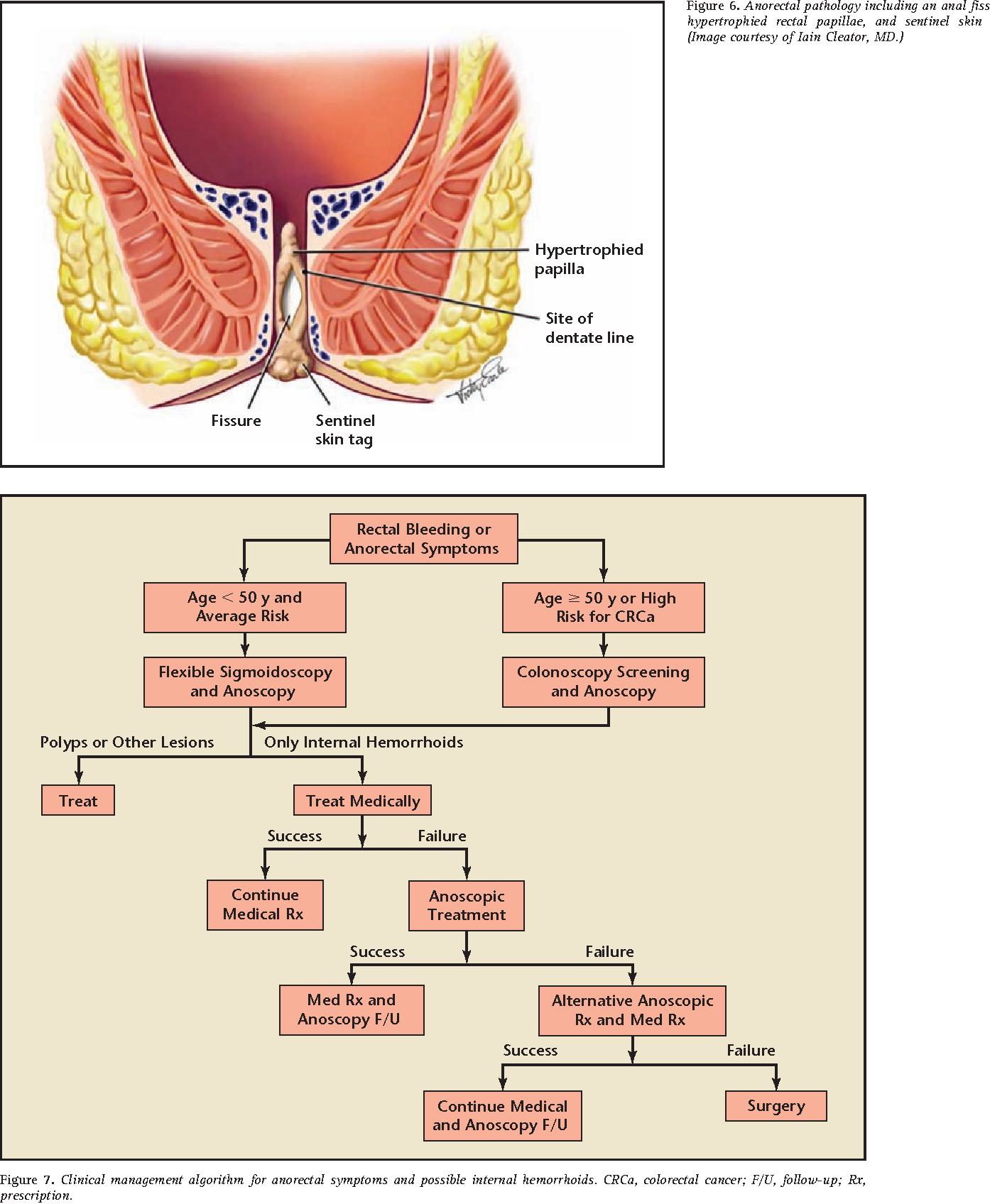 Figure 7 From Definitive Therapy For Internal Hemorrhoids New Opportunities And Options Semantic Scholar