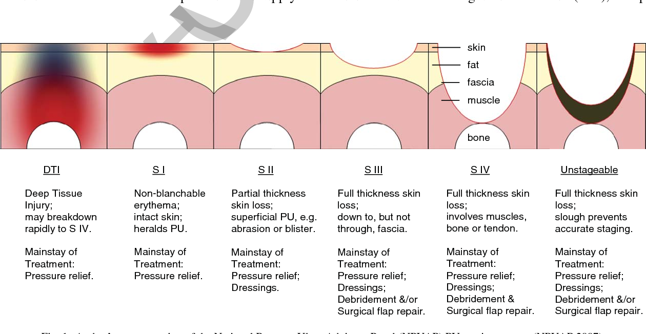 Figure 1 from Preventing ischial pressure ulcers: I  Review
