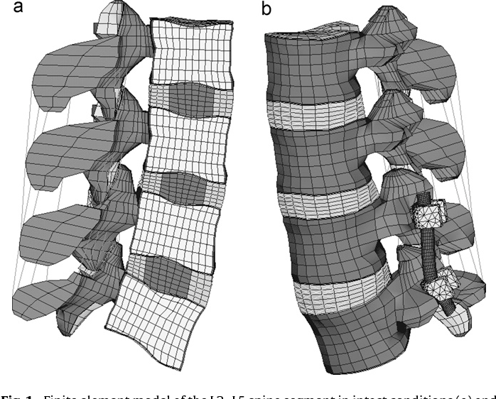 Figure 1 from Rigid and flexible spinal stabilization