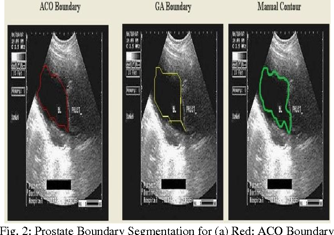PDF] A Parallel Optimized Approach for Prostate Boundary ...