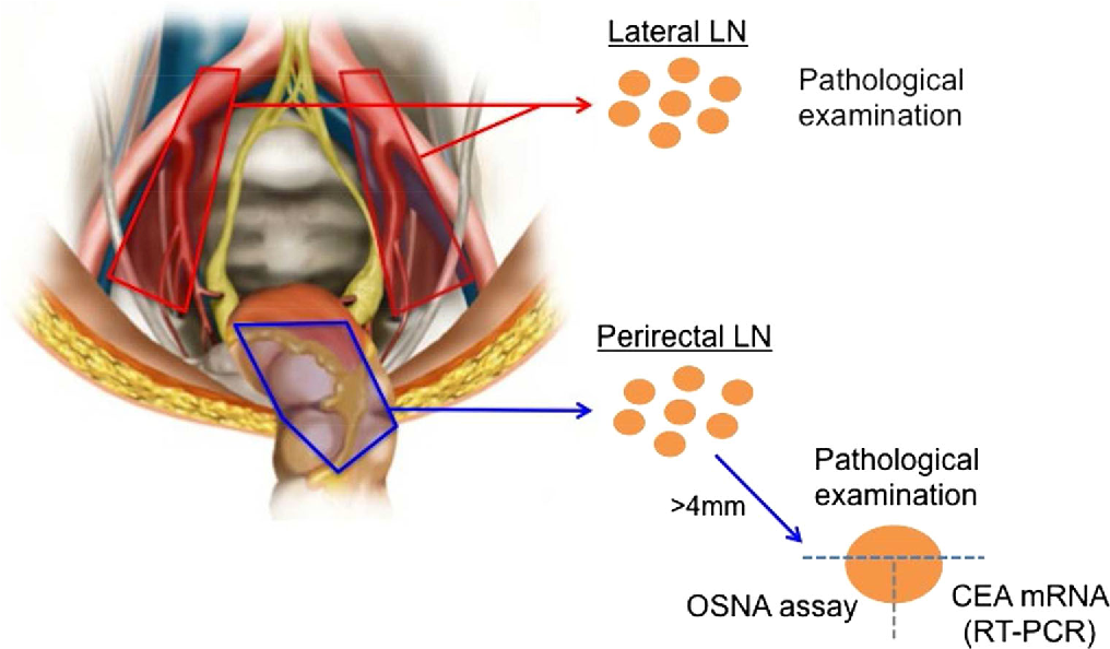 Figure 2 From Inspection Of Perirectal Lymph Nodes By One Step Nucleic Acid Amplification Predicts Lateral Lymph Node Metastasis In Advanced Rectal Cancer Semantic Scholar