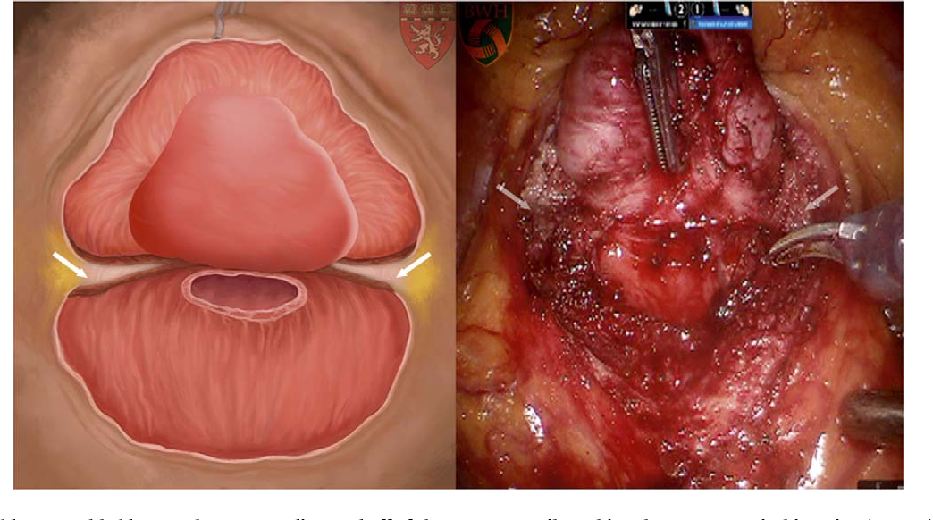 Pdf Surgery In Motion The Impact Of Prostate Size Median Lobe