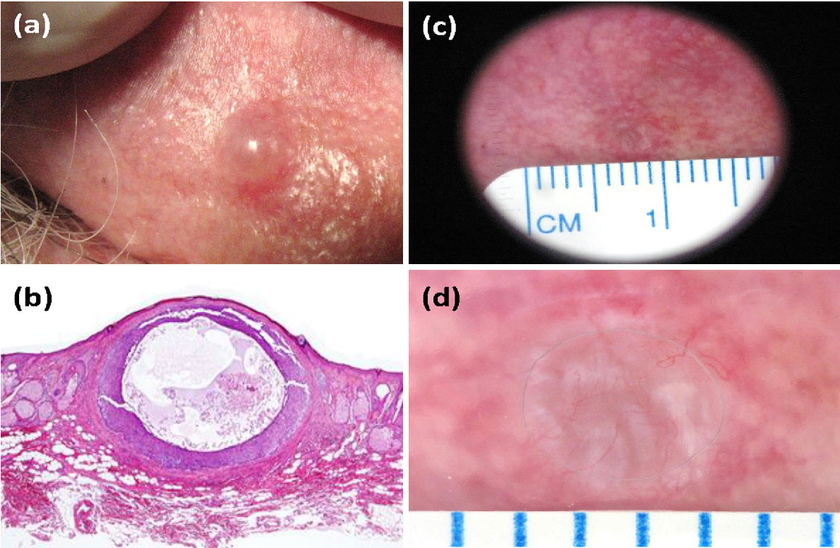 Figure 6 from Dermoscopy of chondrodermatitis nodularis