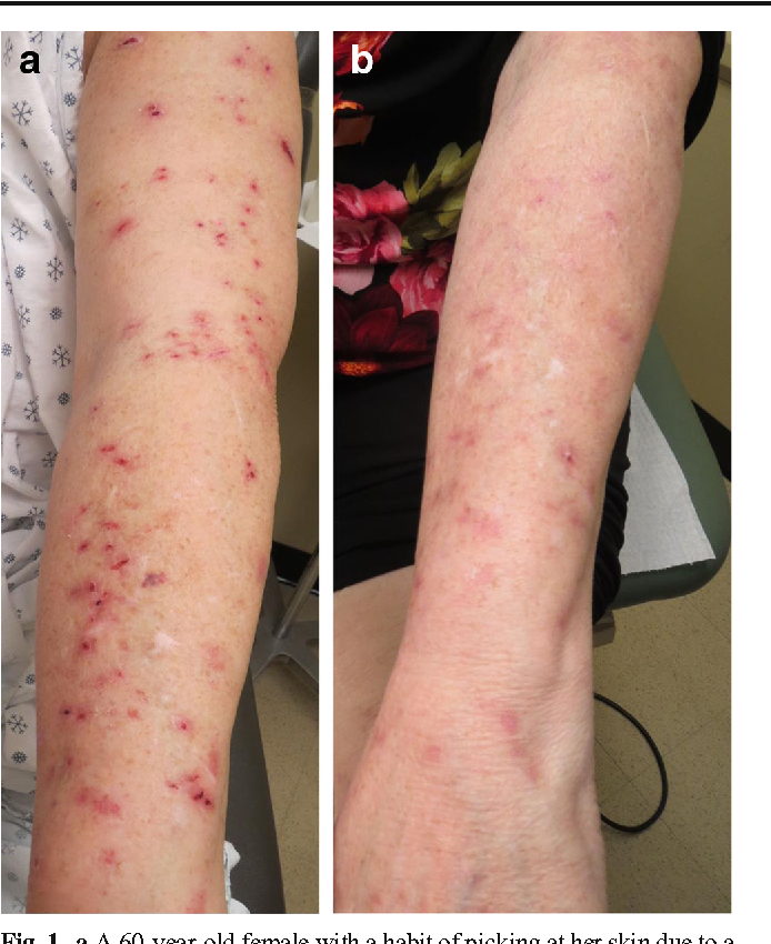 Figure 1 From The Other Itch That Rashes A Clinical And Therapeutic Approach To Pruritus And Skin Picking Disorders Semantic Scholar
