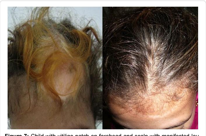 Figure 7 From Behavior Of Hair Follicles In Vitiligo Clinical Presentation And Discussion Semantic Scholar