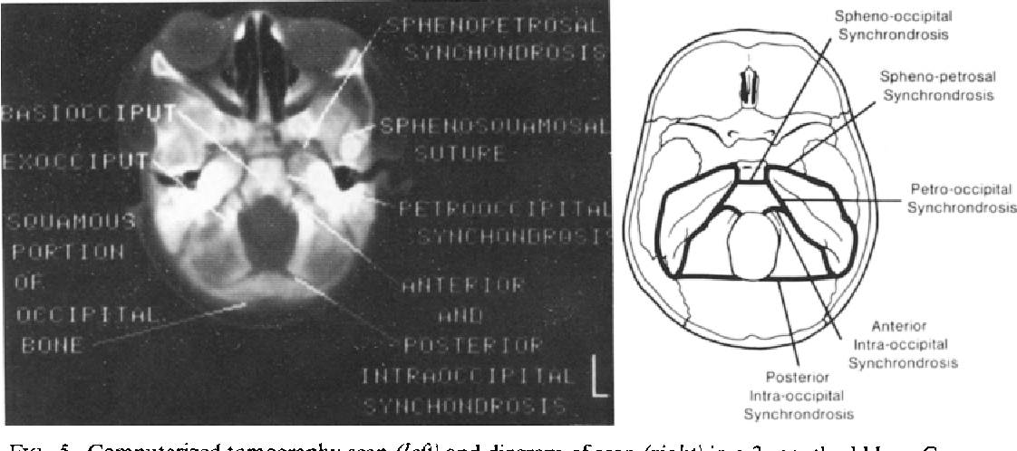 Figure 5 From Computerized Tomography Of Cranial Sutures Part 1 Comparison Of Suture Anatomy In Children And Adults Semantic Scholar There is limited movement until about 20 years of synchondroses. figure 5 from computerized tomography