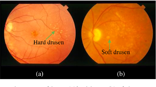 Figure 1 from Automated detection and segmentation of drusen in retinal  fundus images | Semantic Scholar